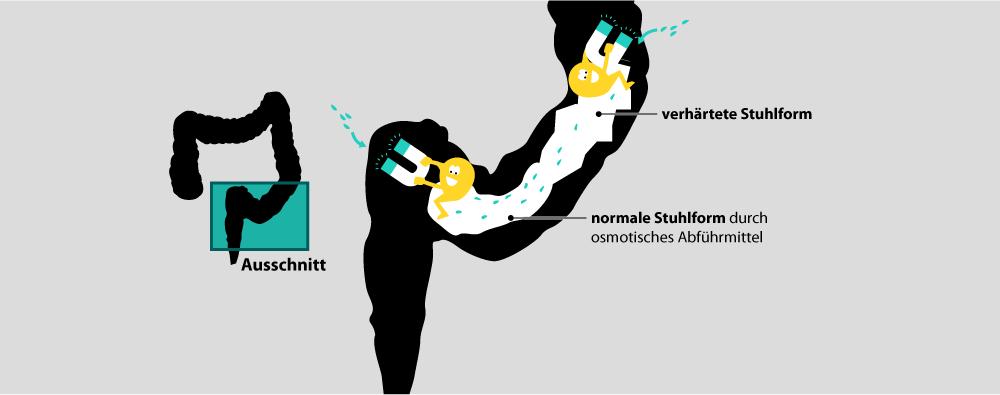 Infografik Osmose